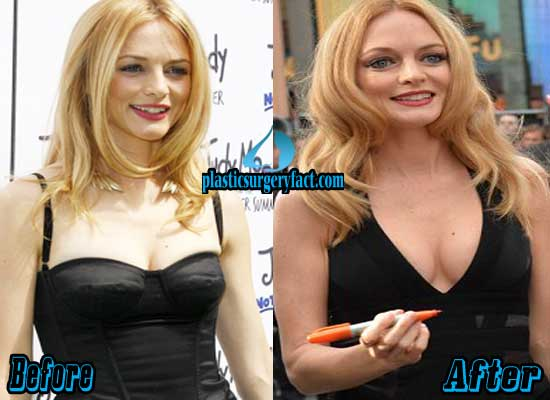 Heather Graham Breast Implants Before and After