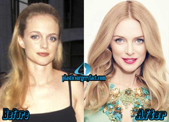 Heather Graham Plastic Surgery Before and After