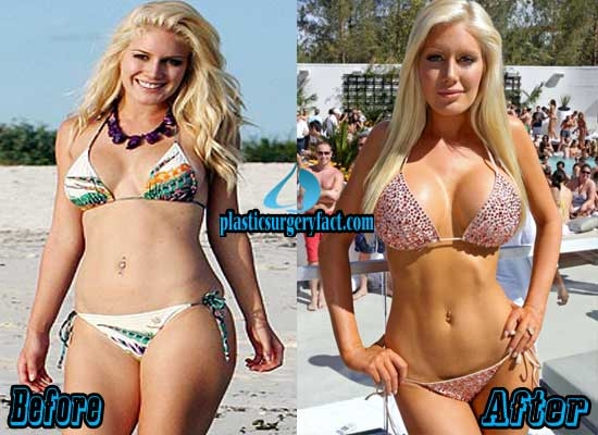 Heidi Montag Liposuction Before and After
