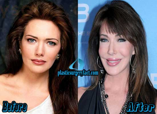 Hunter Tylo Plastic Surgery Before After Photos