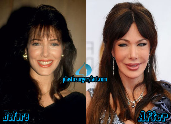 Hunter Tylo Pictures Images Photos
