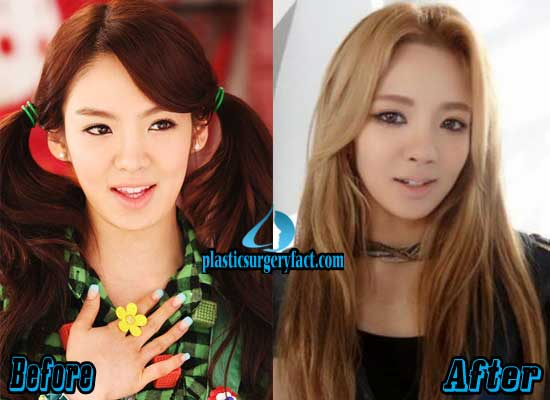 Hyoyeon Eyelid Surgery Before and After