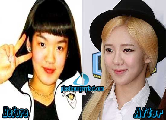 Hyoyeon Nose Job Before and After