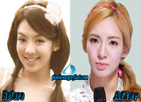 Hyoyeon Plastic Surgery Before and After