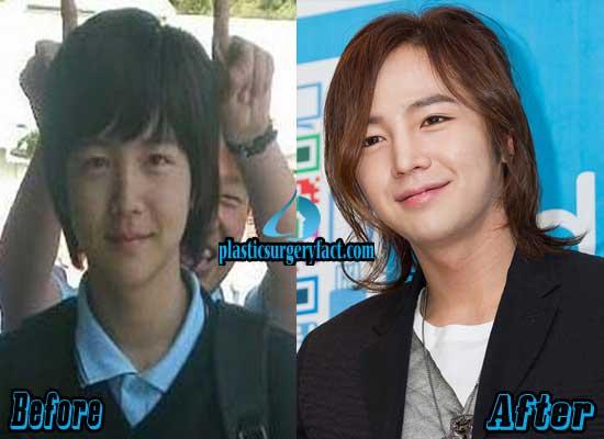 Jang Geun Suk Before and After Plastic Surgery