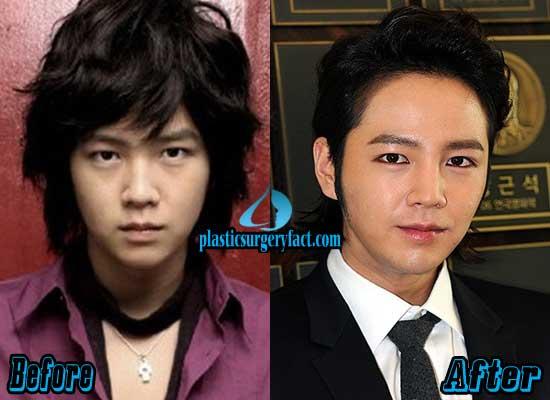 Jang Geun Suk Plastic Surgery Before and After