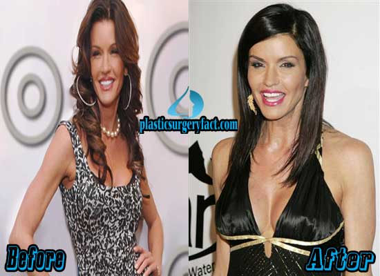 Janice Dickinson Breast Implants Before and After