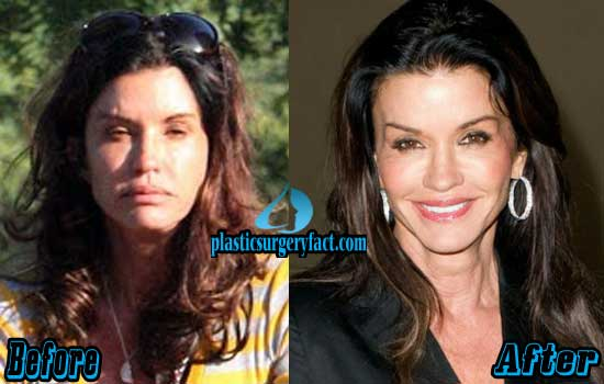 Janice Dickinson Plastic Surgery Before and After