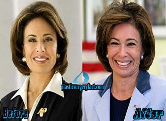 Jeanine Pirro Before and After Plastic Surgery