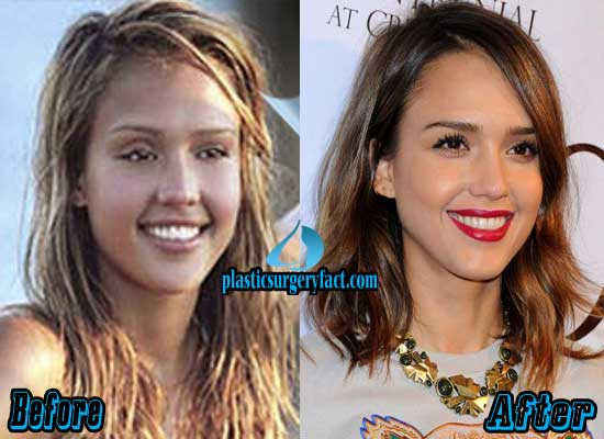 Jessica Alba Nose Job Before and After