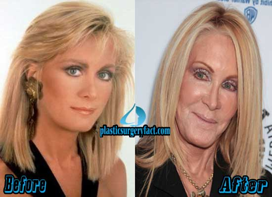 Joan Van Ark Plastic Surgery Before and After