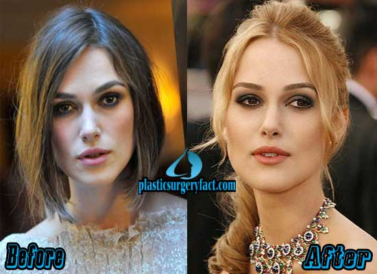 Keira Knightley Plastic Surgery Before and After