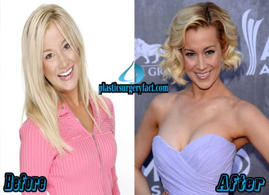 Kellie Pickler Breast Implants Before and After