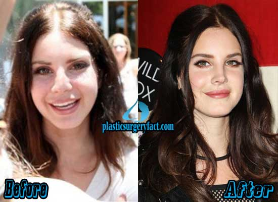 Lana Del Rey Nose Job Before and After