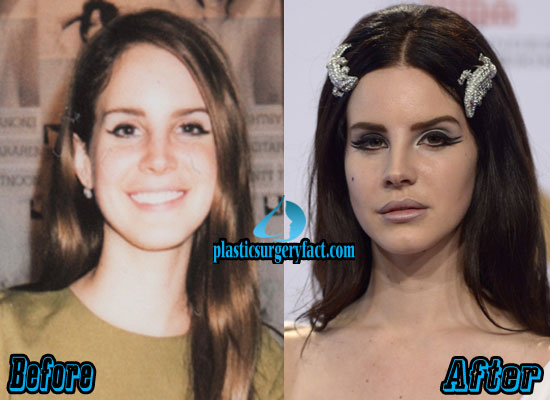 Lana Del Rey Plastic Surgery Before and After