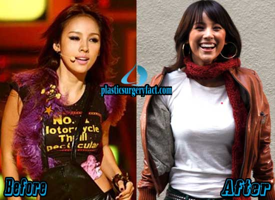 Lee Hyori Breast Implants Before and After