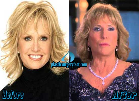 Leslie Charleson Before and After Plastic Surgery