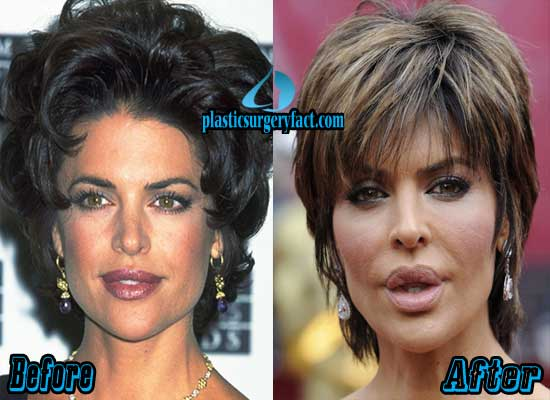 Lisa Rinna Lips Filler Injection