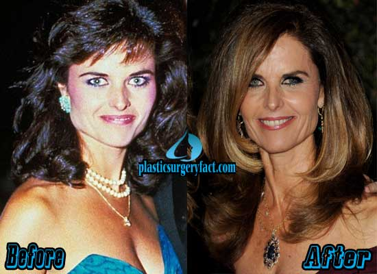 Maria Shriver Before and After Plastic Surgery