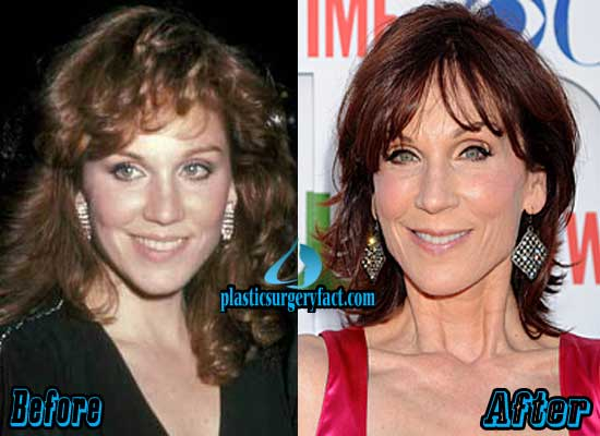 Marilu Henner Before and After Plastic Surgery