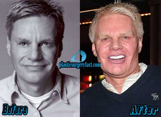 Mike Jeffries Before and After Plastic Surgery