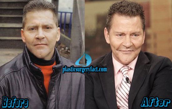 Scott Thorson Plastic Surgery Before and After