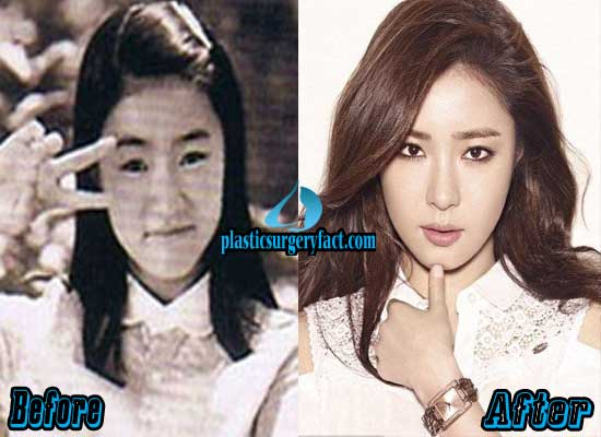 Shin Se Kyung Plastic Surgery Pictures