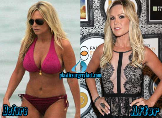 Tamra Barney Boob Job Before and After