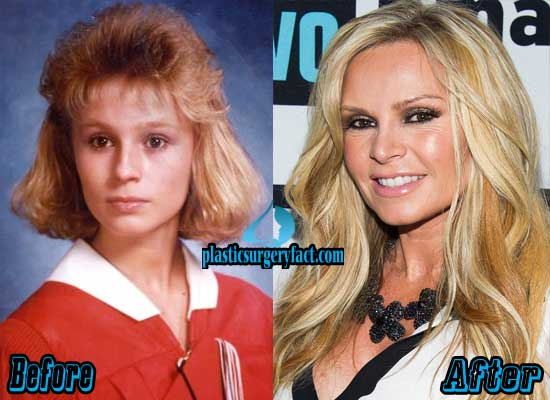 Tamra Barney Plastic Surgery Before and After