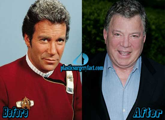 William Shatner Before and After Plastic Surgery