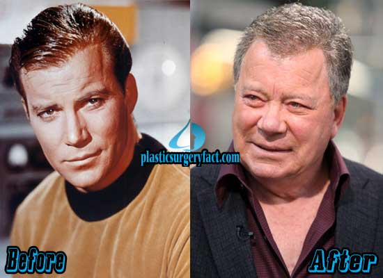 William Shatner Plastic Surgery Before and After