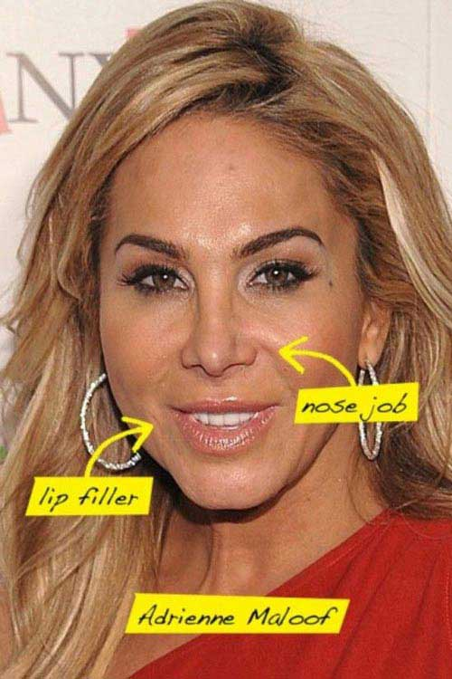Adrienne Maloof Cosmetic Surgery