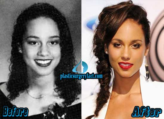 Alicia Keys Nose Job Before and After