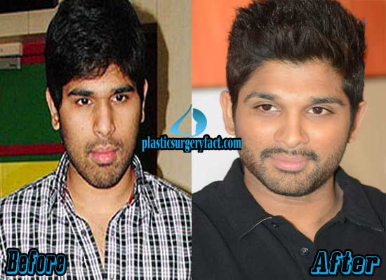 Allu Arjun Before and After Plastic Surgery