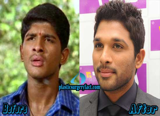 Allu Arjun Plastic Surgery Before and After