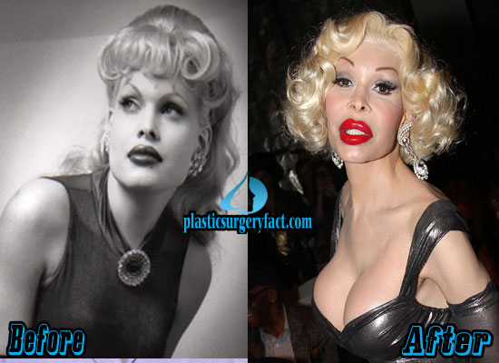 Amanda Lepore Plastic Surgery Photos