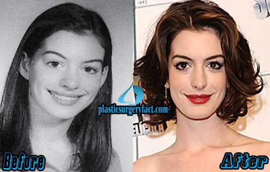 Anne Hathaway Lips Filler Injection