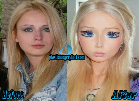 Barbie Woman Plastic Surgery Before and After
