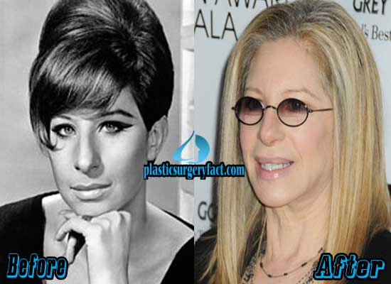 Barbra Streisand Nose Job Before and After