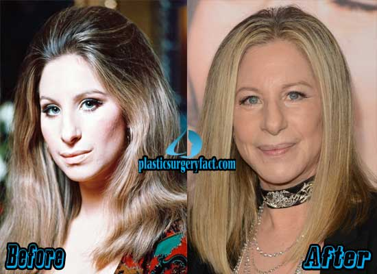 Barbra Streisand Plastic Surgery Before and After