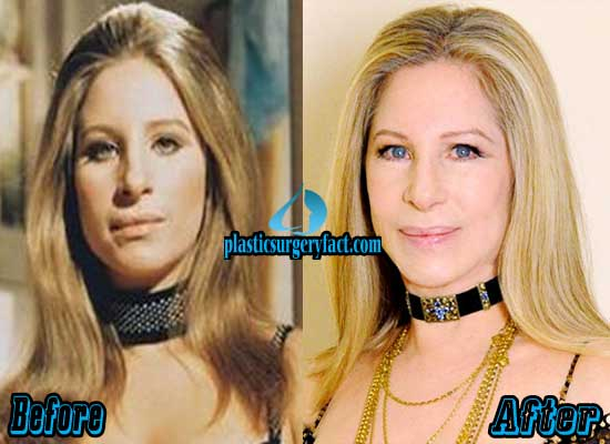 Barbra Streisand Plastic Surgery Face