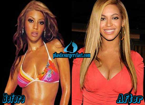 Beyonce Breast Implants Before and After