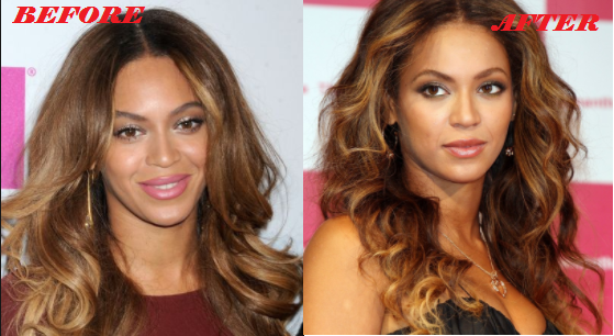 Beyonce Plastic Surgery Before And After Photos Plastic