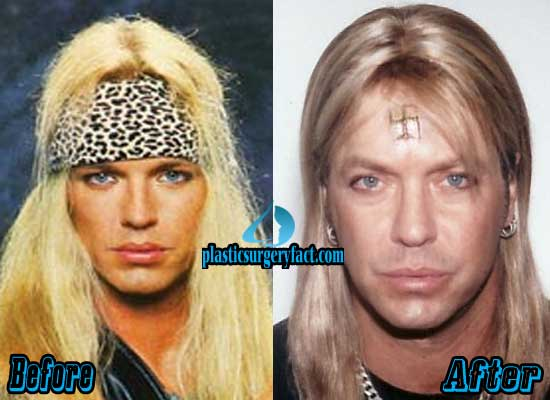 Bret Michaels Plastic Surgery Before and After