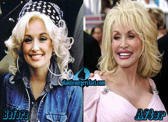 Dolly Parton Plastic Surgery Photos