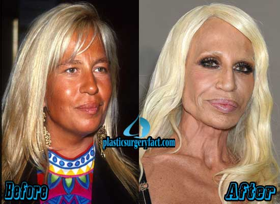 Donatella Versace Plastic Surgery Photos