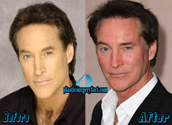 Drake Hogestyn Plastic Surgery Before and After