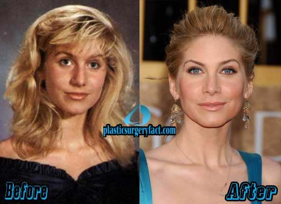 Elizabeth Mitchell Nose Job Before and After