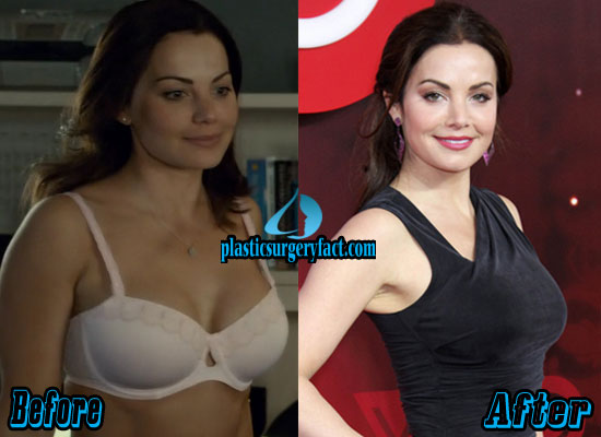 Erica Durance Boob Job Before and After