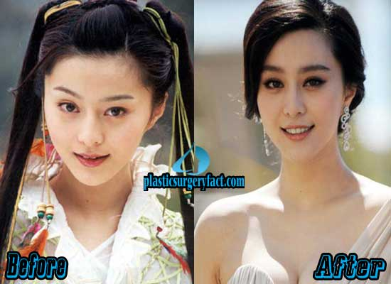 Fan Bingbing Before and After Plastic Surgery